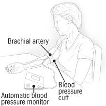diagram of blood pressure monitoring